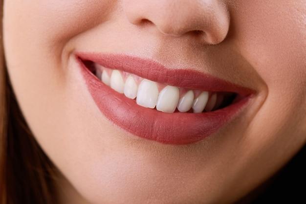Zbliżenie piękna młoda kobieta uśmiech. zdrowie stomatologiczne. wybielanie zębów. koncepcja przywrócenia