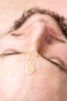 Zbliżenie płynnego wosku między brwiami młodego mężczyzny przed woskiem w salonie kosmetycznym