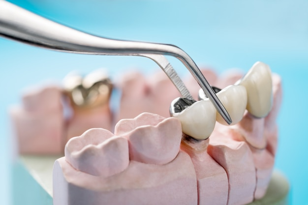 Zbliżenie / protetyka lub protetyka / korona i most implant dentystyczny sprzęt i model ekspresowej naprawy fix.