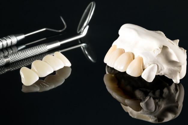 Zbliżenie / protetyka lub protetyka / sprzęt do implantacji koron i mostów oraz modelowa odbudowa ekspresowa.