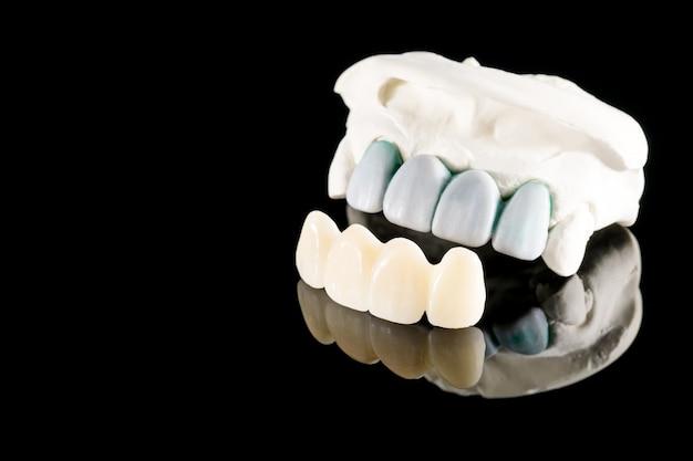 Zbliżenie / protetyka lub proteza / korona zęba i sprzęt do implantacji koron i mostów oraz ekspresowa odbudowa modelu.
