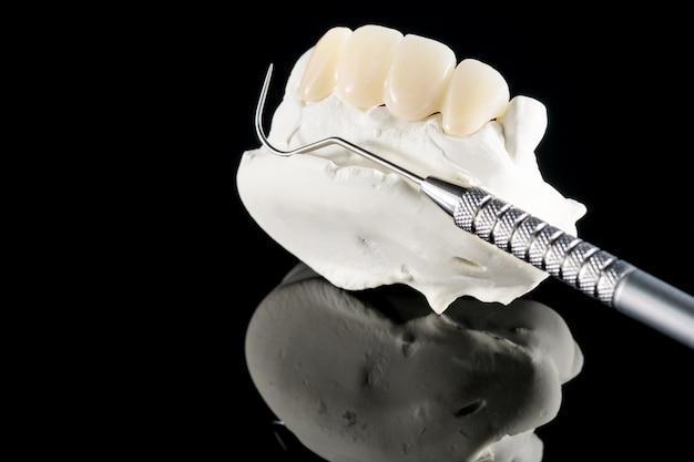 Zbliżenie / protetyka lub proteza / korona zęba i sprzęt do implantacji korony i mostu oraz ekspresowa odbudowa modelu.