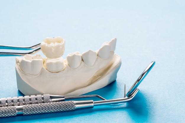 Zbliżenie / protetyka lub proteza / model pojedynczego zęba z koroną i mostem, ekspresowa odbudowa.