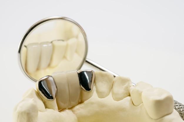 Zbliżenie stomatologiczny maryland most, korona, bridżowy wyposażenie i model ekspresowego dylemata przywrócenie.