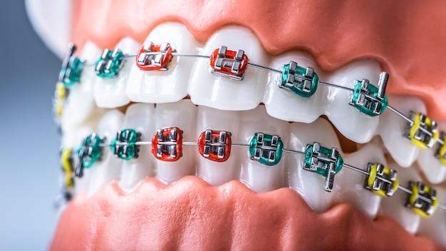Zbliżenie: szczęki i zęby modelu ortodontycznego z aparatami ortodontycznymi.