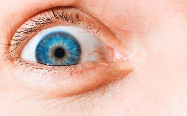 Zbliżenie szeroko otwartego oka ludzkiego, niebieskiej tęczówki, naczyń i naczyń włosowatych, fotografia makro.