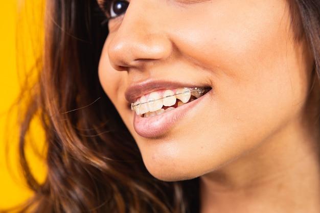 Zbliżenie uśmiechnięta młoda kobieta z przezroczystymi szelkami. zabieg dentystyczny