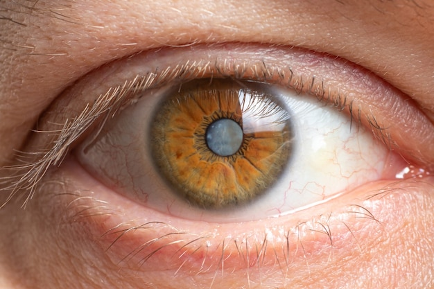 Zbliżenie zaćmy oka ludzkiego