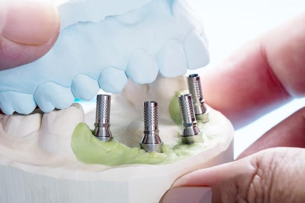 Zbliżenie / zamienne elementy filaru / tymczasowy filar implantu dentystycznego / implant śruby filarowej.