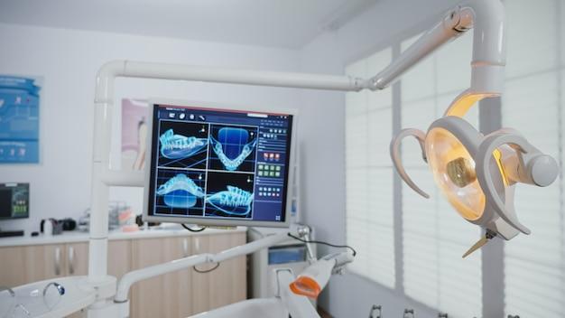 Zbliżenie zdjęć rentgenowskich zębów stomatologicznych na monitorze ujawniających leczenie zębów