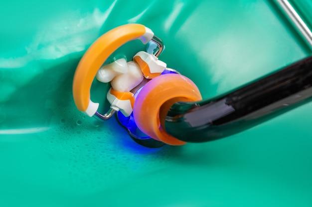 Zdjęcie instrumentów dentystycznych lampa kompozytowa leczenie stomatologiczne zbliżenie