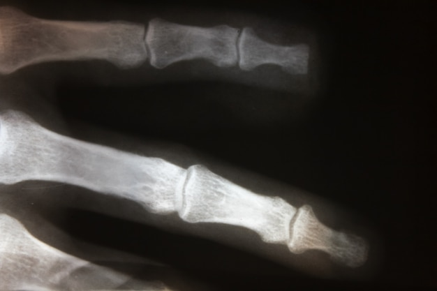 Zdjęcie rentgenowskie części ludzkiego ciała, rentgen, zdjęcie rentgenowskie