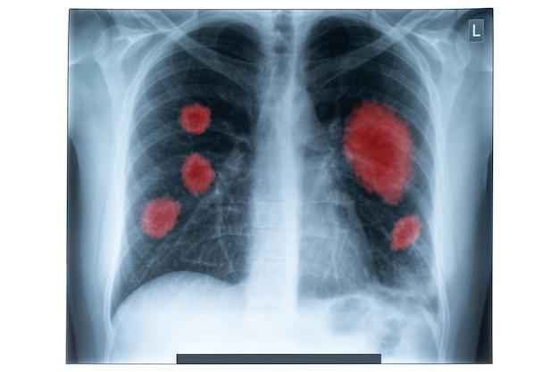 Zdjęcie rentgenowskie klatki piersiowej człowieka do diagnostyki medycznej. koronawirus (covid-19.