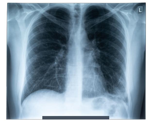 Zdjęcie rentgenowskie klatki piersiowej człowieka do diagnostyki medycznej.