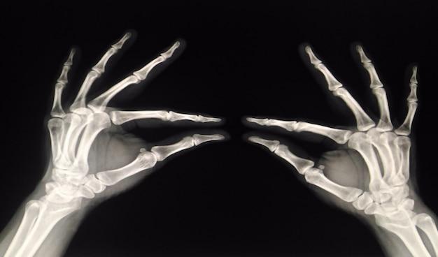 Zdjęcie rentgenowskie obie dłonie (lewa i prawa) - ludzki, zbyt miękki i zamazany obraz ostrości.