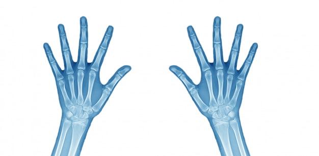 Zdjęcie rentgenowskie obu rąk.