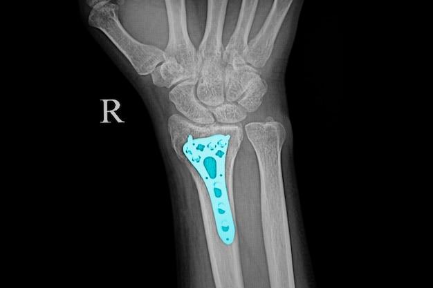 Zdjęcie rentgenowskie przedramienia pacjenta ze złamaniami kości nadgarstka po operacji