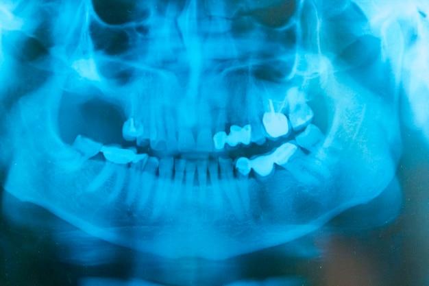 Zdjęcie rentgenowskie twarzy pacjenta