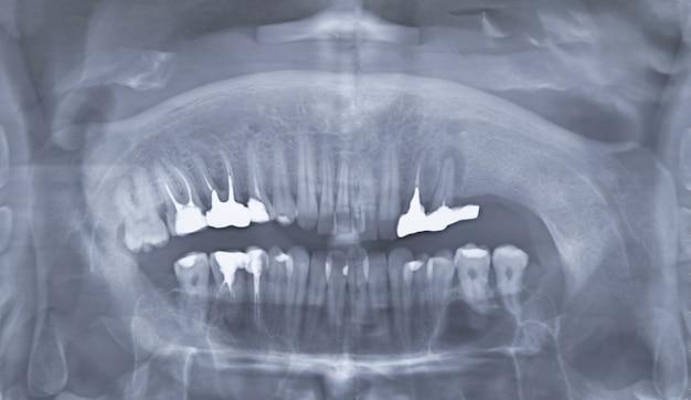 Zdjęcie rentgenowskie zębów. skan zębów