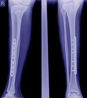 Zdjęcie rentgenowskie złamanej nogi, zdjęcie rentgenowskie złamania nogi z płytką implantu i śrubą.