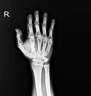 Zdjęcie rentgenowskie złamanie ręki w połowie rt.2nd. pękanie tkanki miękkiej w kościach metakapalnych.