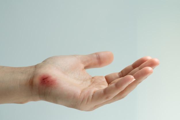 Zdrap rany na zbliżenie kobiecej ręki, koncepcji opieki zdrowotnej i medycyny