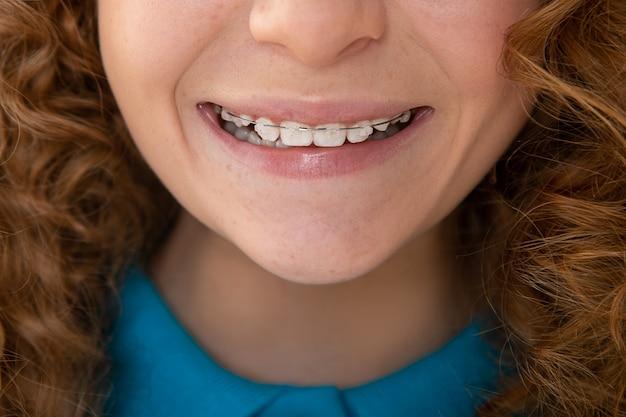 Zdrowy uśmiech dziewczyna z szelkami, dorastający. koncepcja stomatologiczna pielęgnacji zębów. zbliżenie nastolatka