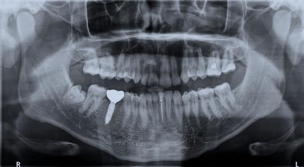 Zęby górne i dolne szczęki rentgenowskiej