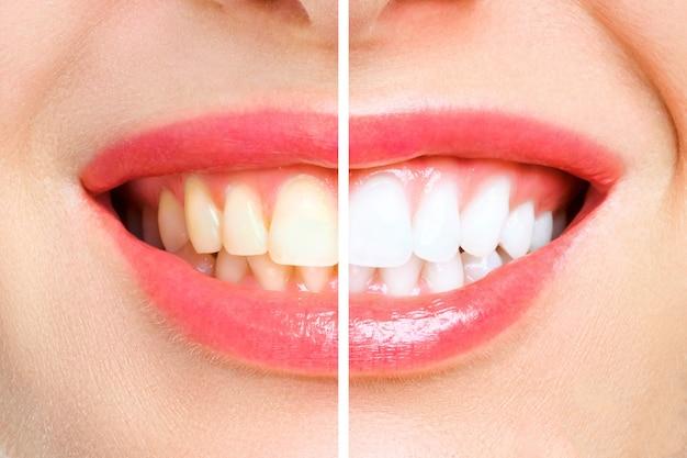 Zęby kobiety przed i po wybielaniu .. obraz symbolizuje, stomatologia