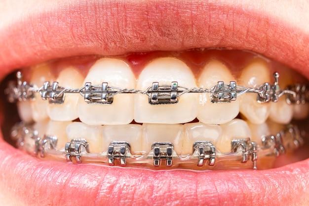 Zęby pierwszego planu z aparatami ortodontycznymi