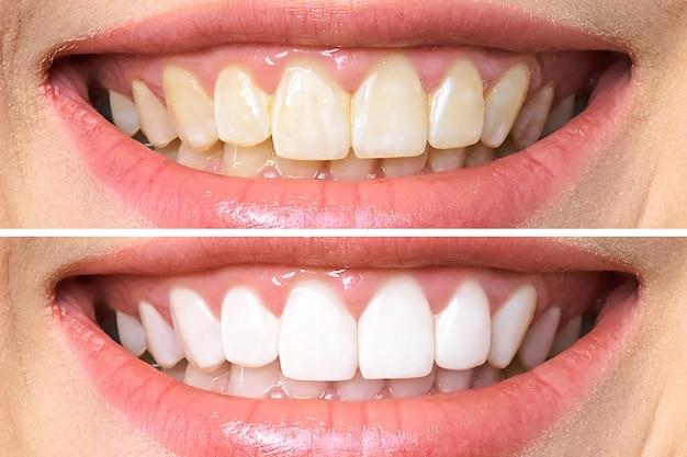 Zęby przed i po wybielaniu