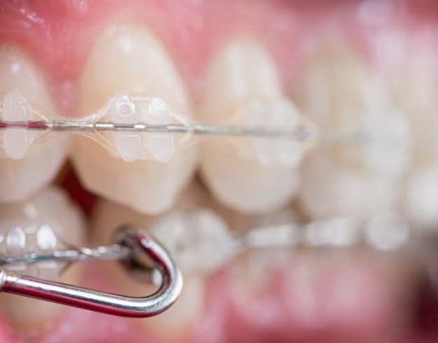 Zęby z aparatem ortodontycznym