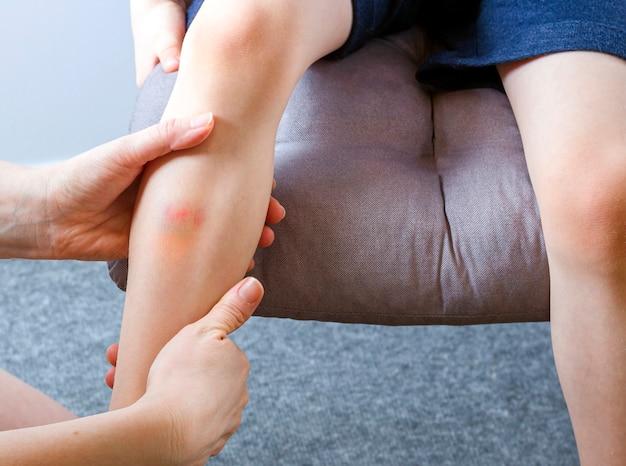 Żeńska ręka trzyma nogę dziecko z siniakiem
