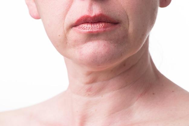 Zmarszczone usta dojrzałej kobiety. znaki starzenia się skóry po 40