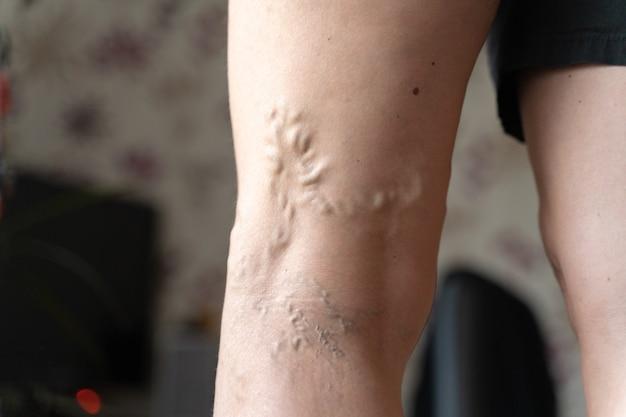 Żylaki na nogach kobiety