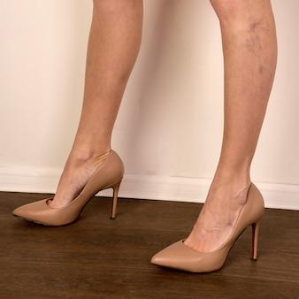 Żylaki na szczupłych kobiecych nogach. flebologia - obraz
