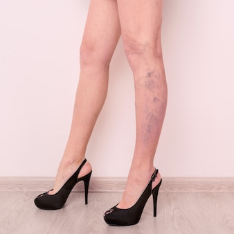 Żylaki na szczupłych kobiecych nogach