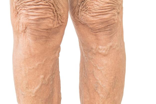 Żylaki u starszych kobiet