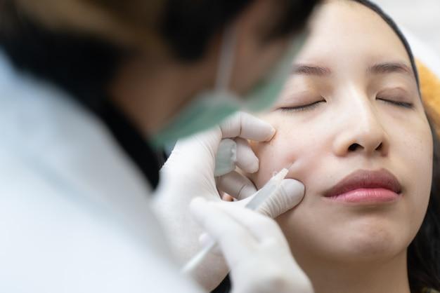 Aguja mesoterapia en clínica de belleza. cosméticos inyectados en el rostro de la mujer.