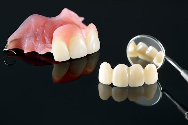 Aislante protésico dental - parte superior de la prótesis parcial.