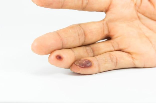 Ampollas en el dedo causadas por una descarga eléctrica