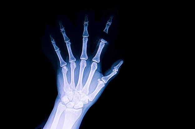 Amputación traumática del dedo.