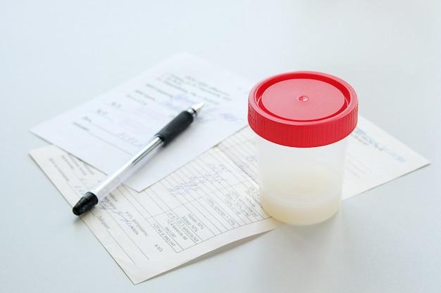 Análisis de semen en un tanque de prueba médica.