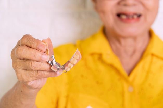 Una anciana asiática de más de 70 años sonríe con algunos dientes rotos y sosteniendo una dentadura en la mano.