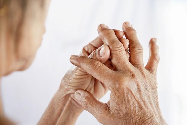 Anciana que sufre de gota, dolor en las articulaciones