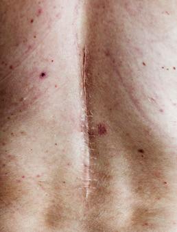 Anciano cicatriz de la cirugía de espalda