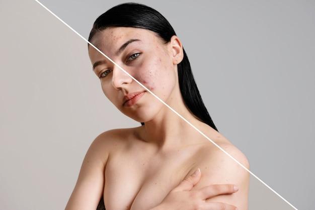 Antes y después retrato de mujer retocada