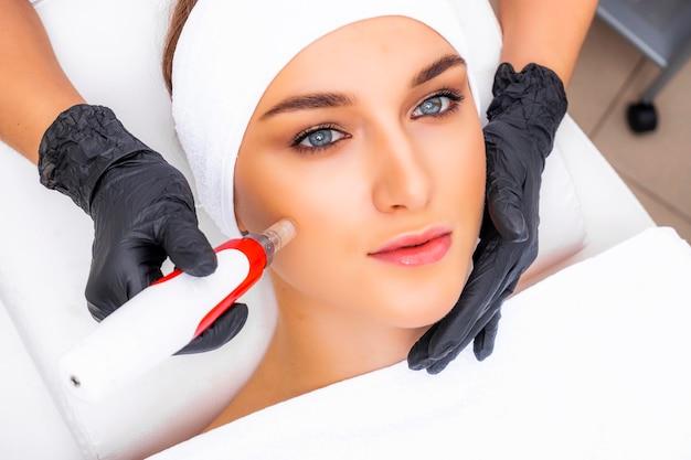 Aparato dermapen en manos de una esteticista. nuevo procedimiento de rejuvenecimiento de la piel. procedimiento de mesoterapia fraccionada. dispositivo cosmético.