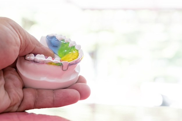 Aparato de ortodoncia retenedor dental