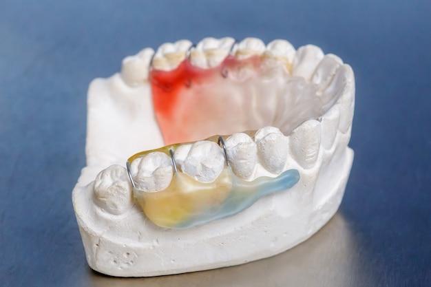 Aparatos dentales coloridos en modelo de dientes de arcilla
